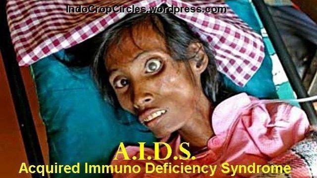 [Obat AIDS Ditemukan] Akhirnya, Pertama Kali HIV Berhasil Hilang Total Pada Binatang Hidup!